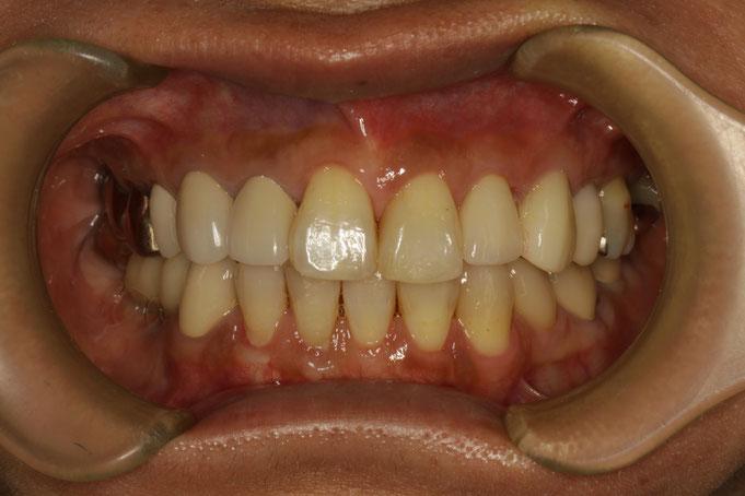 歯茎の再生治療とレジン充填で歯茎の位置を左右で揃えました。