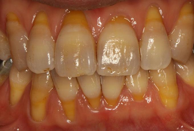 全体的に歯茎が退縮してしまっています。