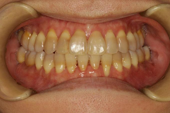 歯茎が少し下がってしまっています
