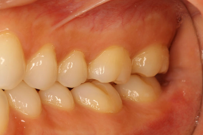 奥歯の歯茎が下がり始めています