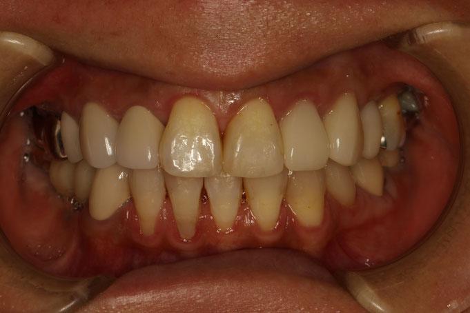 下の前歯の歯茎が下がってレジンという光で固める詰め物で下がった歯茎を覆っています。
