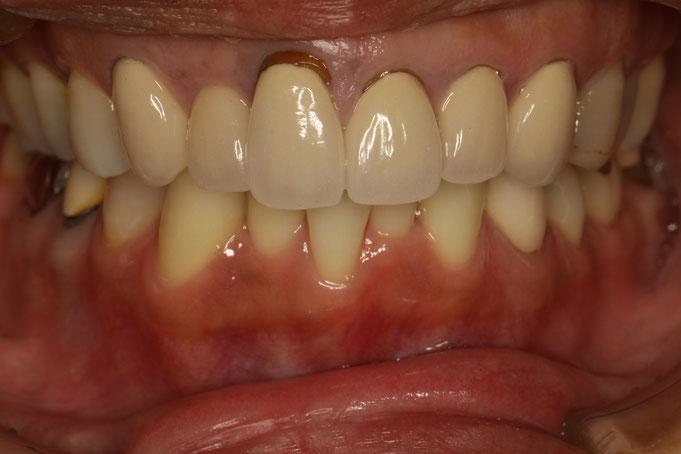 オールセラミックの歯茎が下がる