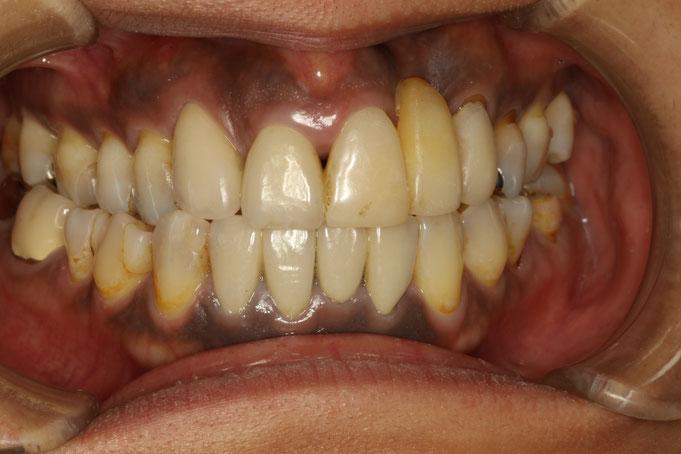 ブリッジの歯の歯茎再生