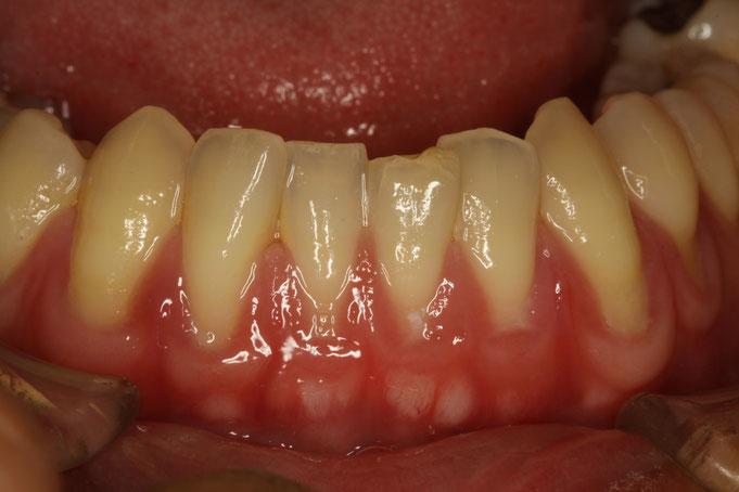 歯茎が下がってしまったときの治療