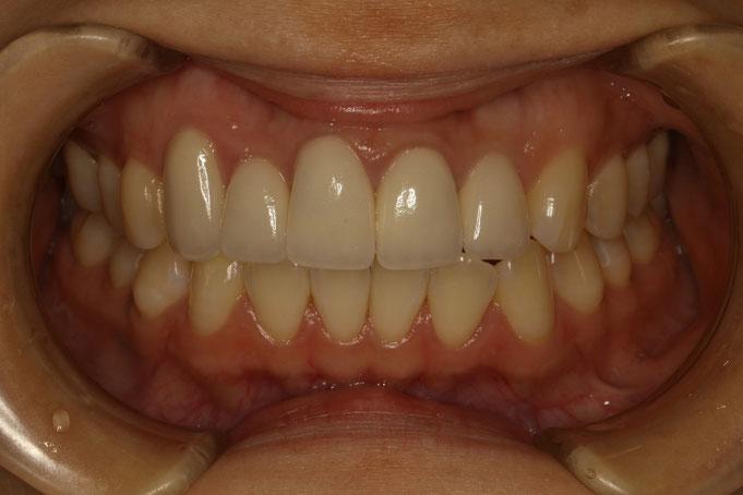 前歯の差し歯の長さが左右でちがう