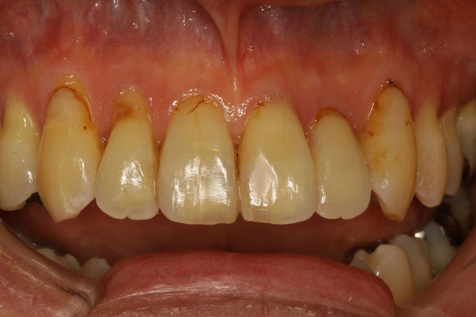 下がった歯茎に光で固まるレジンという詰め物を詰めています。