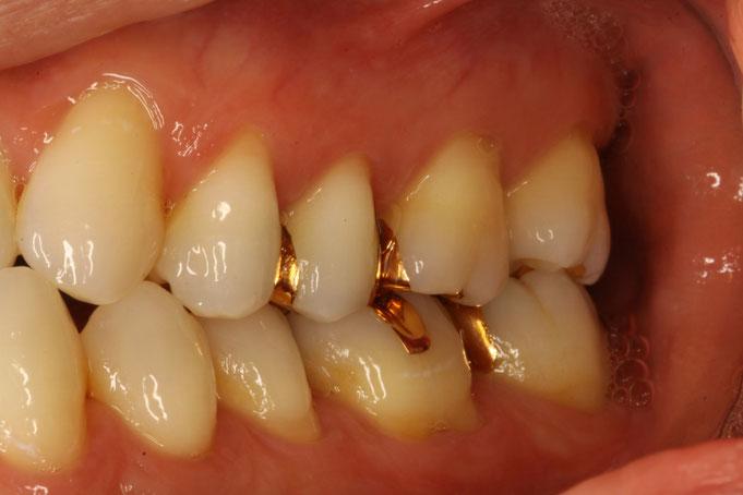 奥歯の歯茎が下がる