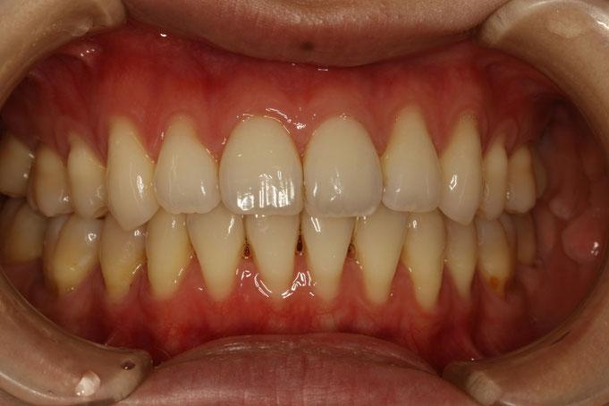 歯茎の再生治療の治療前