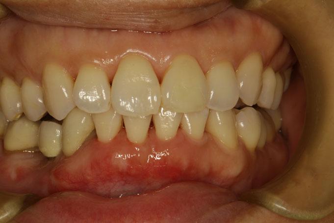 矯正治療でさらに歯茎が下がらないように、歯茎の厚みを増して歯茎の位置も回復させています。
