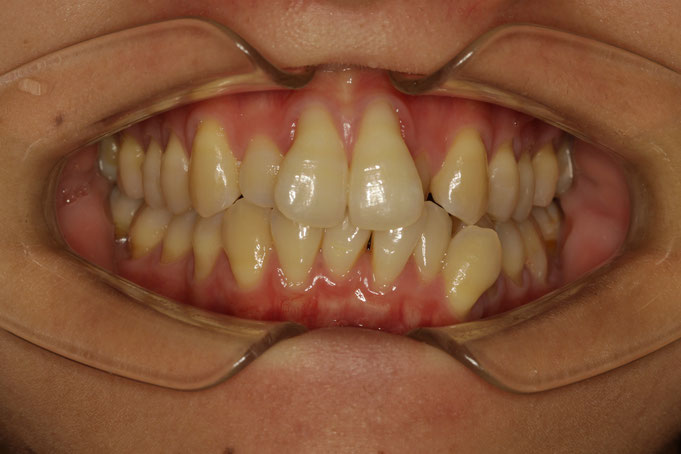 前歯2本の歯茎の再生治療前の状態