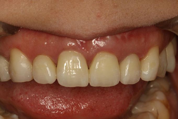 下がった差し歯の歯茎を再生