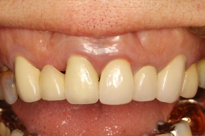 ブリッジの歯茎のくぼみの歯茎を再生