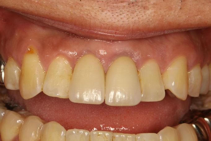 歯茎が少し下がり始めています
