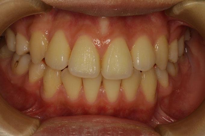 歯の大きさを小さくしたいというご希望の場合
