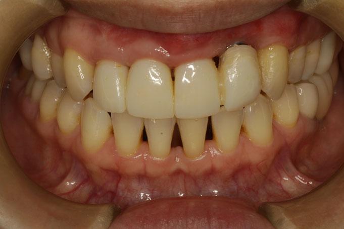 天然の歯の歯茎は回復しましたが、インプラントの部分はあまり変わりませんでした。