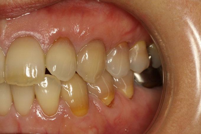 変色した歯の歯ぐきの再生