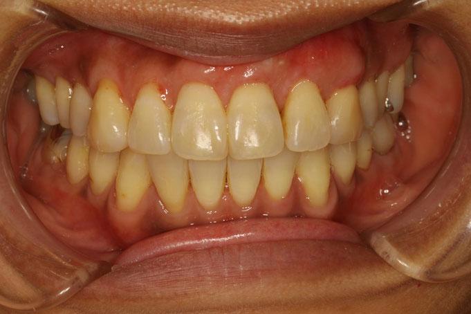 矯正治療後に歯茎が下がってしまったケース 治療後