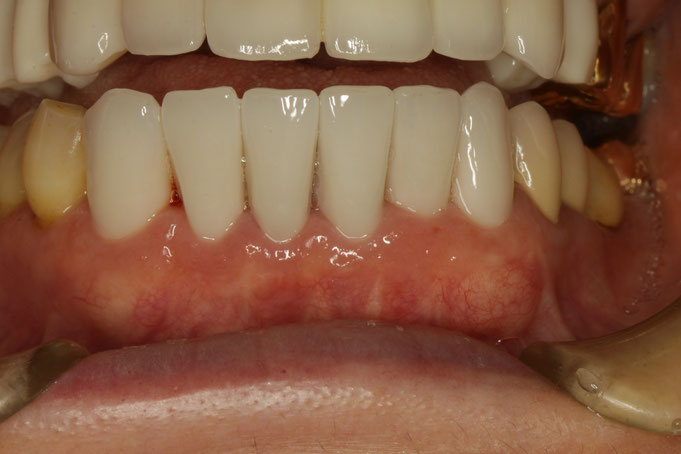 歯茎が回復したため、歯の長さが短くなっています