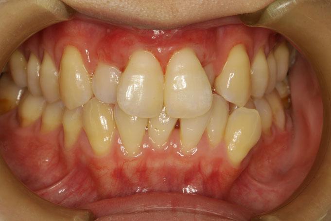 歯茎の再生治療後1週後の状態