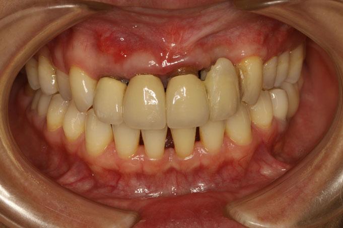 前歯4本の歯茎が下がってしまっています。
