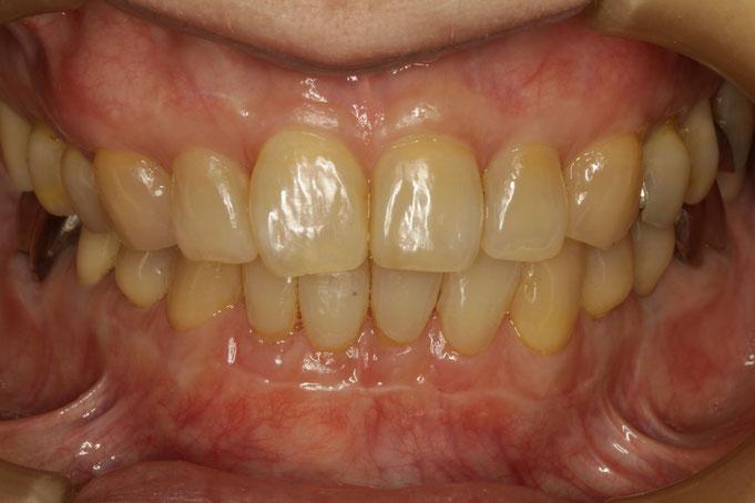 歯並びが悪い場合、歯茎が下がってしまっていなくても、上下的に歯茎の位置が変わります