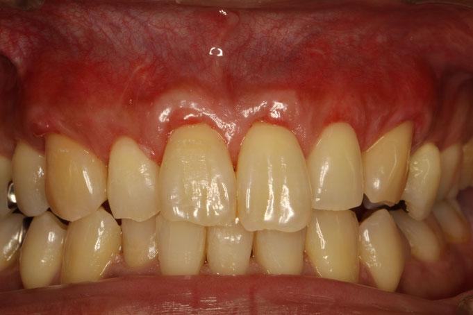 前歯6本の歯茎が下がったケース