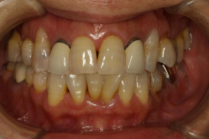差し歯の歯茎がが黒くなった