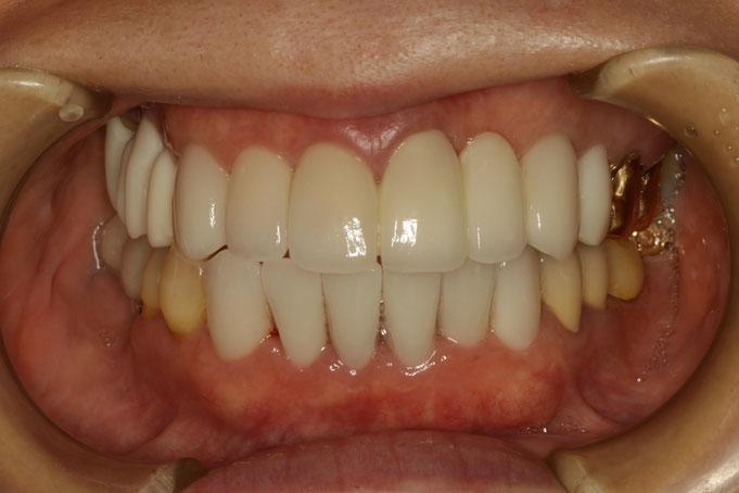 歯周病と歯茎の再生と審美歯科