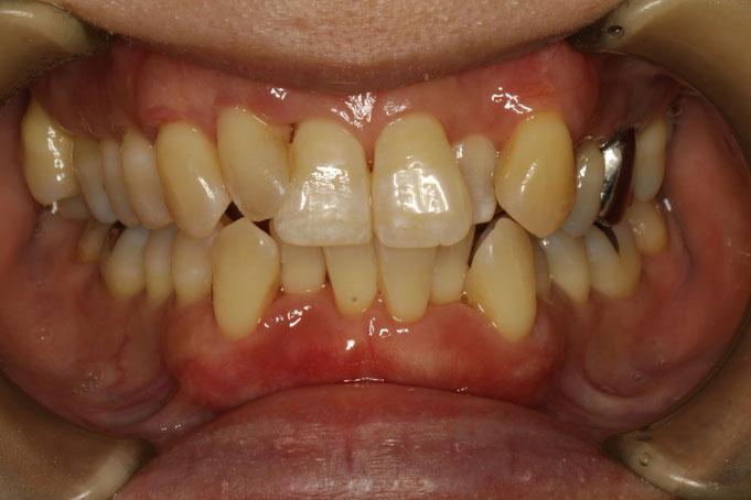 八重歯の歯茎を再生させた状態