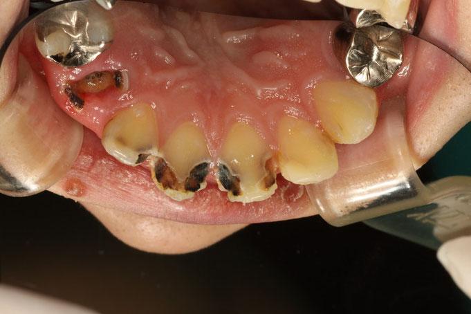 歯がボロボロで全顎治療