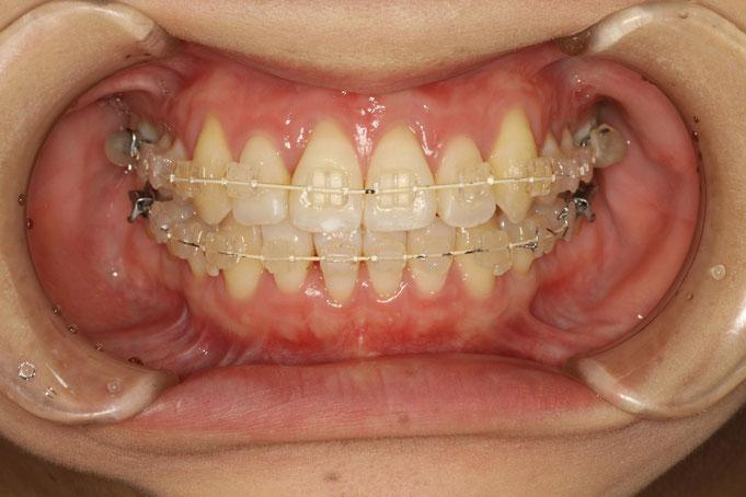 歯茎が下がっている方の矯正治療の場合