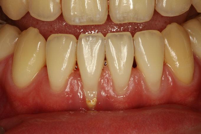 歯茎が下がってきた状態