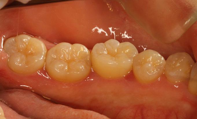 歯茎の腫れ