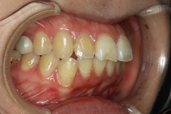 前歯が2本大きくて、出っ歯に見えてしまう