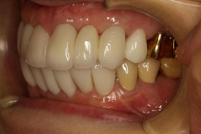 歯周病と審美歯科