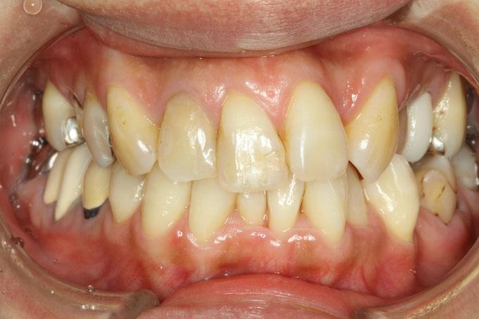 歯の真ん中のズレを直す審美歯科治療