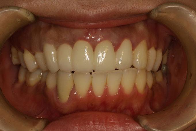 出っ歯を審美歯科で治療