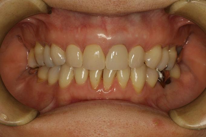 長い差し歯を短くする審美歯科治療