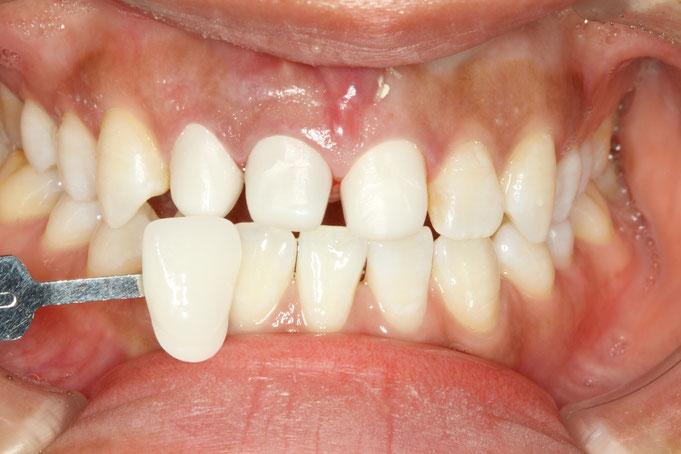 変色歯の土台の色調整