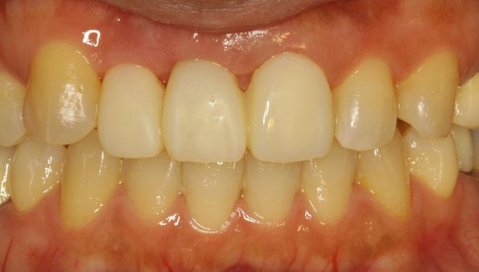 ブリッジの歯茎のくぼみを改善する審美歯科治療