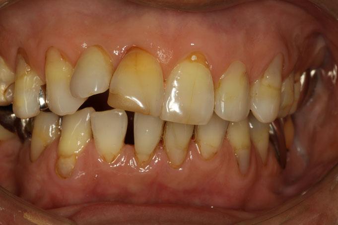 噛み合わせと審美歯科