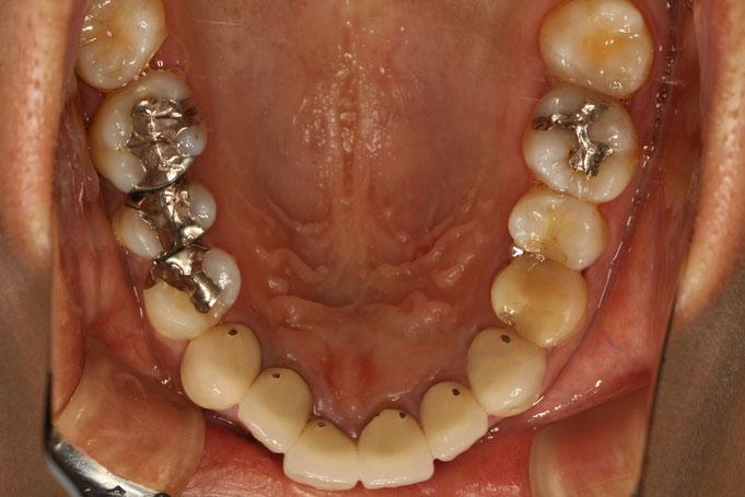 オールセラミックで審美歯科