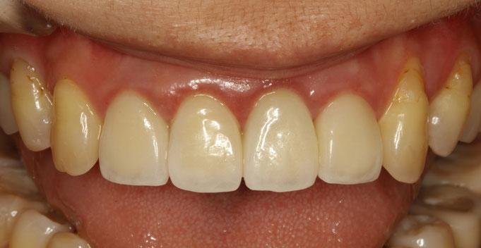 前歯4本にオールセラミック治療をされた後、歯茎の赤みを気にされてご来院いただいたケース