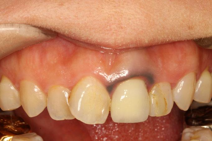 歯茎が黒い時の治療