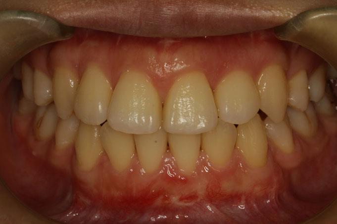 歯が大きい場合の審美歯科