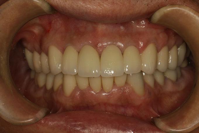 噛み合わせの審美歯科治療