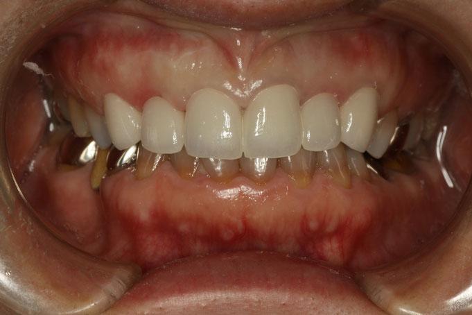変色歯のオールセラミック治療
