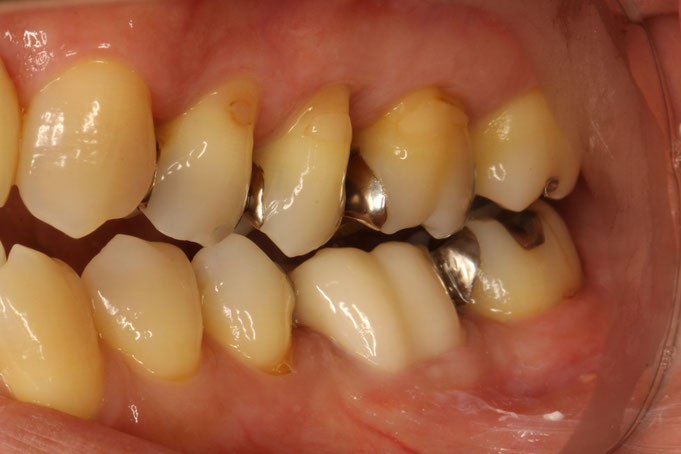 奥歯の審美歯科