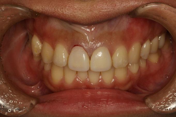 四角い前歯 歯茎の整形治療前