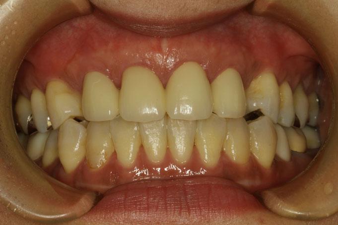 審美歯科治療と合わせて歯茎の再生治療